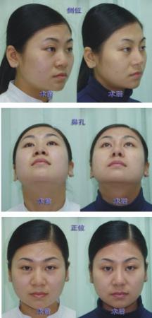 鼻背解剖结构图