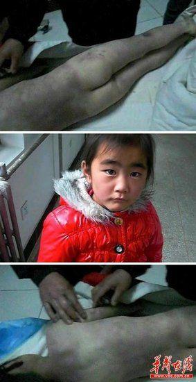 近日,山西平顺县7岁女孩小潇然被虐待致死的消息,引发网友的极大愤慨。 网络截图