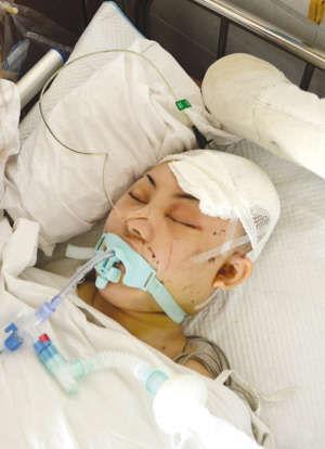 正在医院抢救的娜娜,目前已经脑死亡