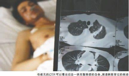 CT片里可清晰的看到钢筋穿过肺部的痕迹