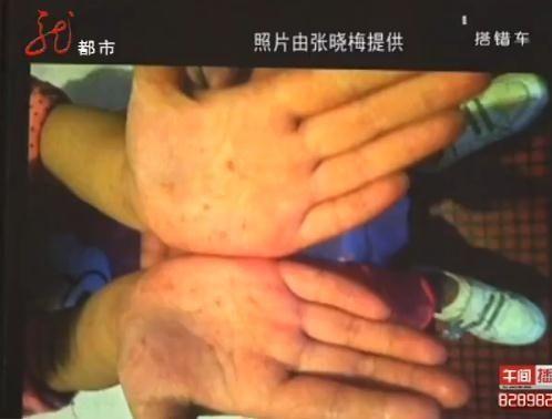 女童被针扎过的小手。(图片为视频截图)
