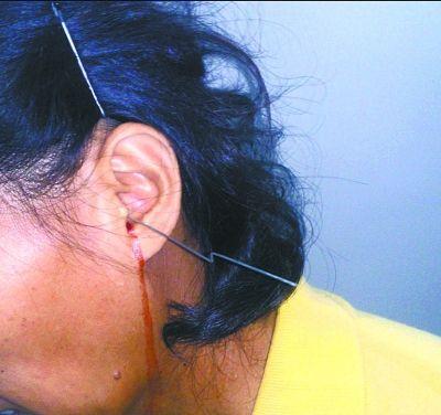 刘女士被伞骨穿耳,血流如注。