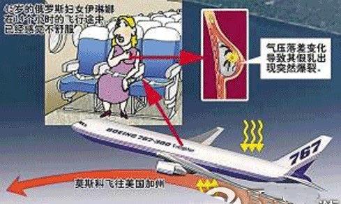 隆胸女子乘飞机出游 气压变化致假乳爆裂