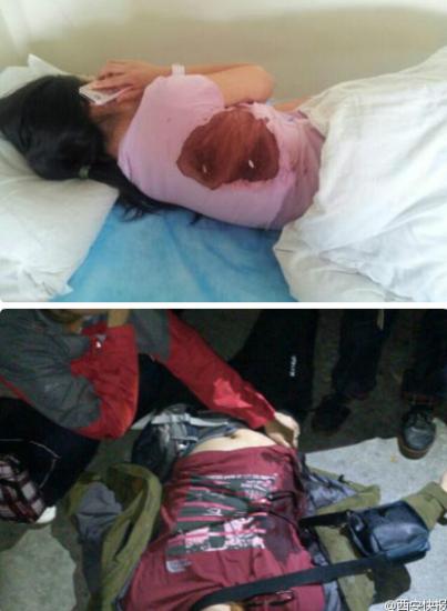 网友称滞留夫妻因要求退票,被景区保安痛殴并捅了数刀。