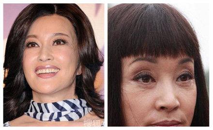 刘晓庆拉皮前后对比图