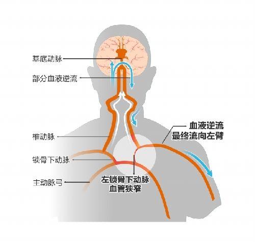 """左侧锁骨下动脉有一处变狭窄,血流不畅,导致压力变小,产生了流体力学上的""""虹吸""""效应,左侧锁骨下动脉不仅没有向上给头部供血,反而引起其他供应脑部的血发生逆流,然后向下供应给了左臂。  制图王雪"""