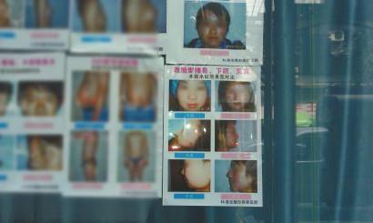 高红梅在盐市街某诊所墙上看到了有自己整形照片的广告