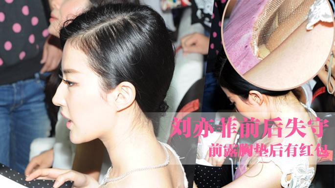 刘亦菲前后失守 玉背瑕疵小红点蚊子包抢镜图片