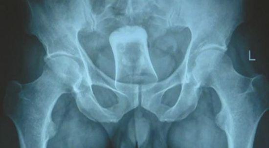 经过X光检查后,男子体内被发现了一个直肠异物。