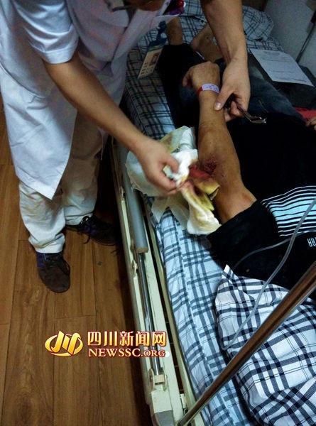 医生为钟明(化名)检查受伤左臂