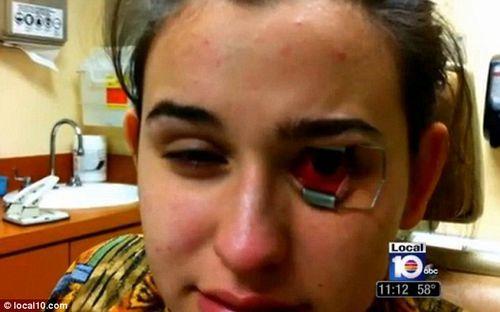 图为因配戴受变形虫感染的隐形眼镜,几乎失明的美国18岁少女海德。